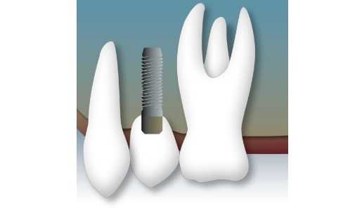 dientesok